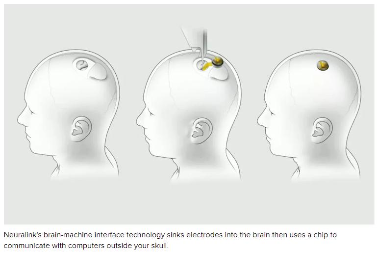 Neuralink implant scheme